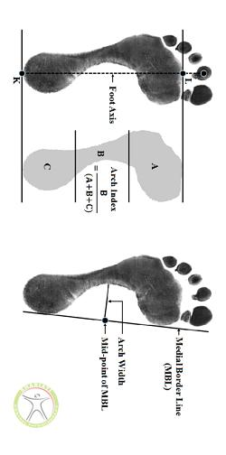 http://scpt.ir/uploads/Definitions-of-foot-arch-parameters-a-arch-index-AI-measurement-from-the-footprint.png