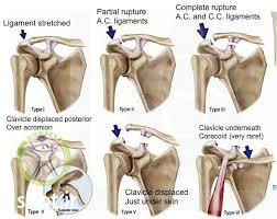 acromioclavicular joint stage shariati