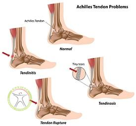 http://scpt.ir/uploads/achilles-tendon-injuries-different.jpg
