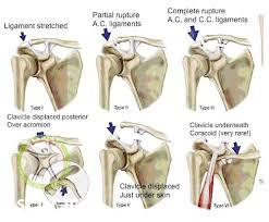 ac joint injury stage