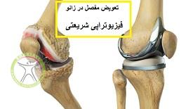 http://scpt.ir/uploads/arthrosis-knee-arthroplasty.jpg