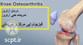 http://scpt.ir/uploads/arthrosis.png