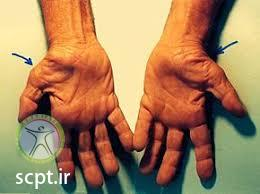 http://scpt.ir/uploads/carpal tunnel syndrome atrophy.jpg