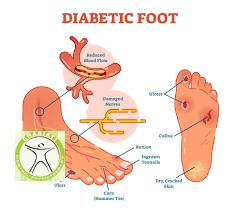 http://scpt.ir/uploads/diabetic foot laser therapy vascular.png
