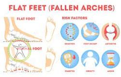 http://scpt.ir/uploads/flat-feet-risk-factors.jpg