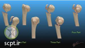 type of humeral head fracture