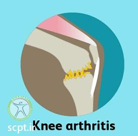 http://scpt.ir/uploads/knee-pain-types-1.jpg