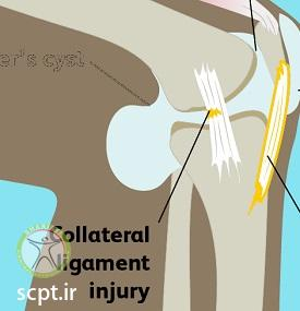 http://scpt.ir/uploads/knee-pain-types-5.jpg