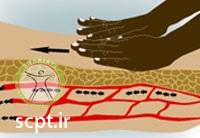 http://scpt.ir/uploads/massage-shariati-clinic-spa-blood-circulation.jpg