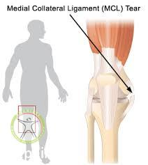 http://scpt.ir/uploads/medial collateral ligament.jpg