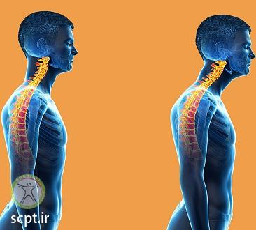 http://scpt.ir/uploads/neck physiotherapy 3.jpg
