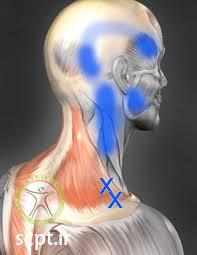 neck trigger point