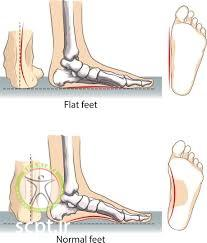 http://scpt.ir/uploads/normal feet versus flat feet.jpg