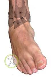 http://scpt.ir/uploads/osteochondritis-dissecans-ankle-signs-and-symptoms.jpg