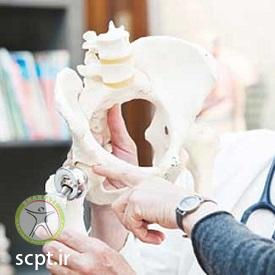 http://scpt.ir/uploads/pelvic-bone-replacement.jpg