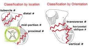 http://scpt.ir/uploads/scaphoid fracture classifications.png