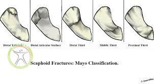 http://scpt.ir/uploads/scaphoid fracture mayo classification.jpg