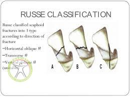 http://scpt.ir/uploads/scaphoid fracture russe classification.jpg