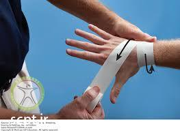 http://scpt.ir/uploads/scaphoid fracture taping.jpg