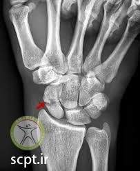 http://scpt.ir/uploads/scaphoid fracture x ray.jpg