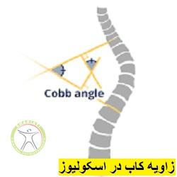 http://scpt.ir/uploads/scoliosis-cobb-angle.jpg