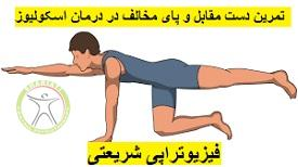 http://scpt.ir/uploads/scoliosis-exercise-3.jpg