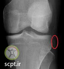 segond fracture acl