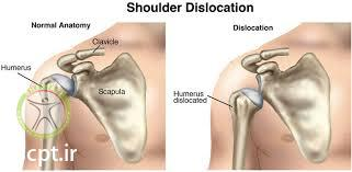 http://scpt.ir/uploads/shoulder dislocation 1.jpg