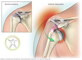 http://scpt.ir/uploads/shoulder dislocation anatomy.jpg