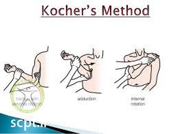 http://scpt.ir/uploads/shoulder dislocation kocher method.jpg
