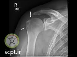 http://scpt.ir/uploads/shoulder dislocation tubercle fracture.jpg