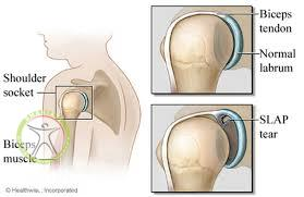 http://scpt.ir/uploads/slap tear 1.jpg