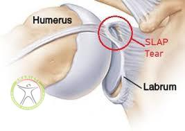 http://scpt.ir/uploads/slap tear.jpg