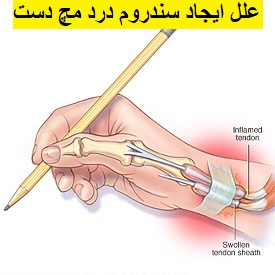 http://scpt.ir/uploads/wrist-pain-de-duervains-syndrome-4